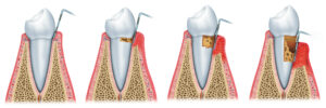 Sequence of Periodontitis. Gel for your gums.